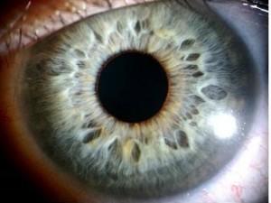 immagine per iridologia